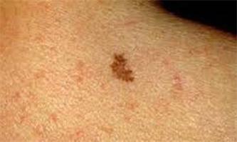 چگونه از سرطان پوست پیشگیری کنیم؟!
